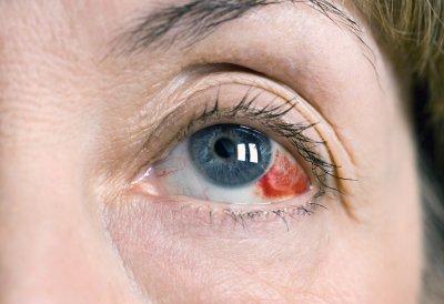 Eye-Injuries